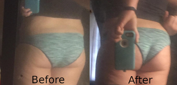How to Get a Bigger Butt - Before and After